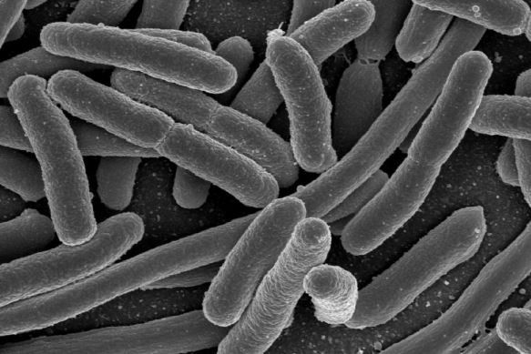 Escherichia coli (E. coli | Credit: Image courtesy of Aston University