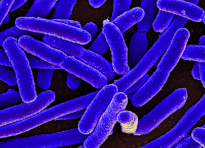 Colorized scanning electron micrograph of Escherichia coli [Credit: NIAID Wikimedia Commons
